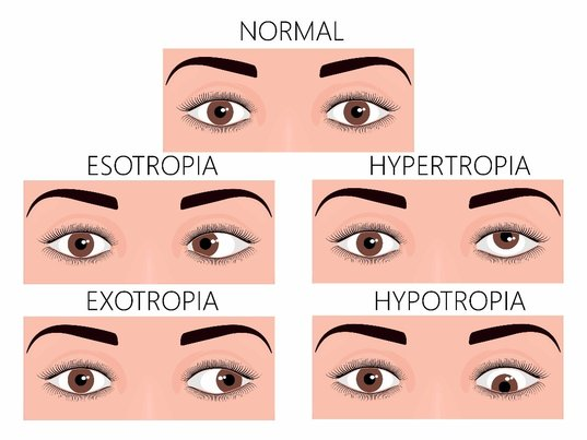 Types of strabismus or cross eyes compared to normal eyes